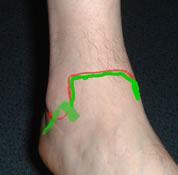 lat ankle exam