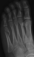 distal  fracture
