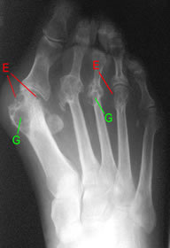 radiograph of rheumatoid foot with bone destructive lesions marked